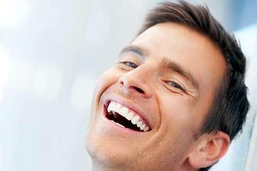 Carillas dentales de Composite estético