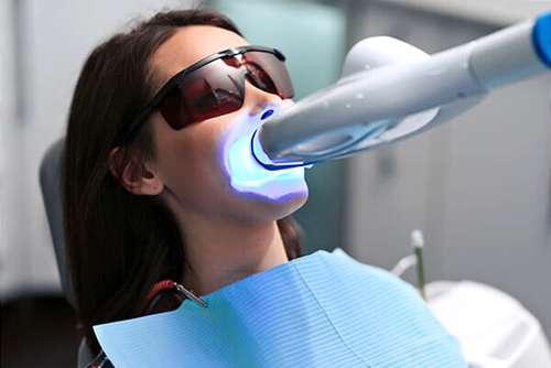 Blanqueamiento Dental LED en O Burgo (Culleredo - Coruña). Especialistas en Clínica Dental Cuidadent