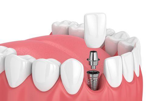 Implante dental unitario en O Burgo - Culleredo (A Coruña)