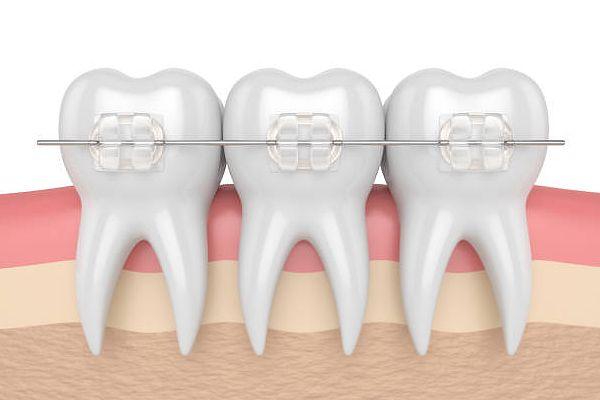 Ortodoncia estética con Brackets de Zafiro transparente en O Burgo - Culleredo (A Coruña)