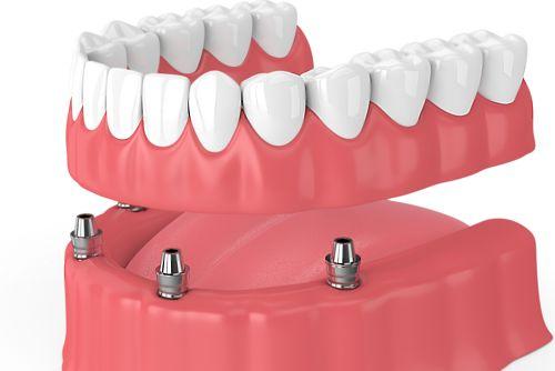 Sobredentadura o Prótesis semifija sobre Implantes con anclajes tipo locator en O Burgo (Culleredo - A Coruña)