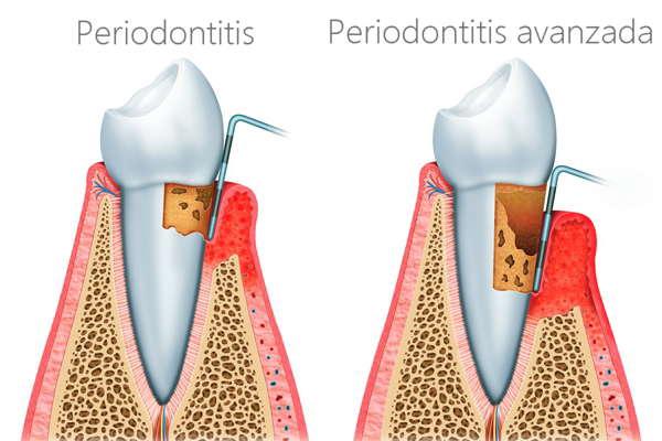 Periodontitis o enfermedad periodontal causada por la falta de higiene dental
