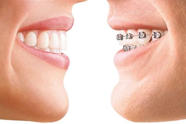 Ortodoncia invisible Invisalign ventajas transparente