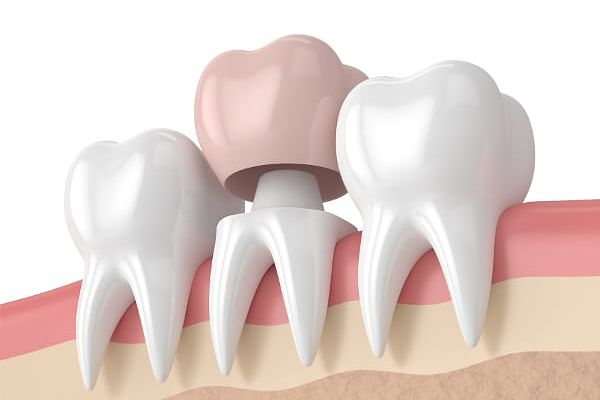 Corona sobre diente (funda dental)